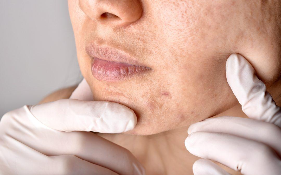 Maskné? Problemas en la piel por el uso de las mascarillas